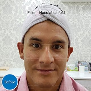 Before Filler to Nasolabial Folds Treatment