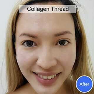 After Collagen Thread Treatment