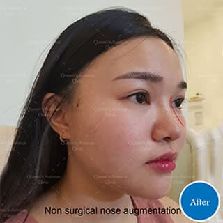 After Nose Augmentation