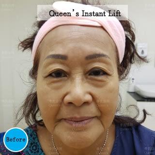 Instant-Lift-Before-Aunty-Helen