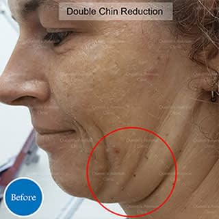 Before Double Chin Reduction Treatment
