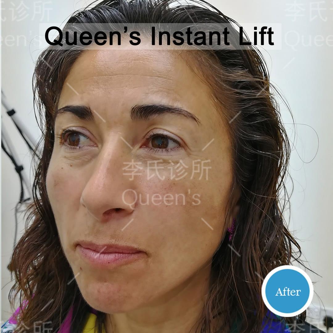 Rita-Pisu-After-Instant-Lift-Treatment