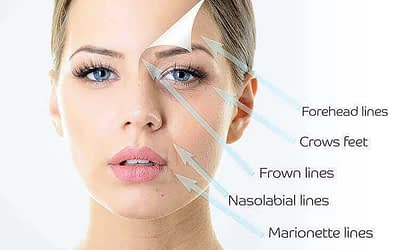 What do Malaysian think about medical aesthetic in Malaysia?