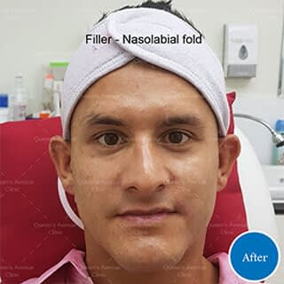 After Filler to Nasolabial Folds Treatment