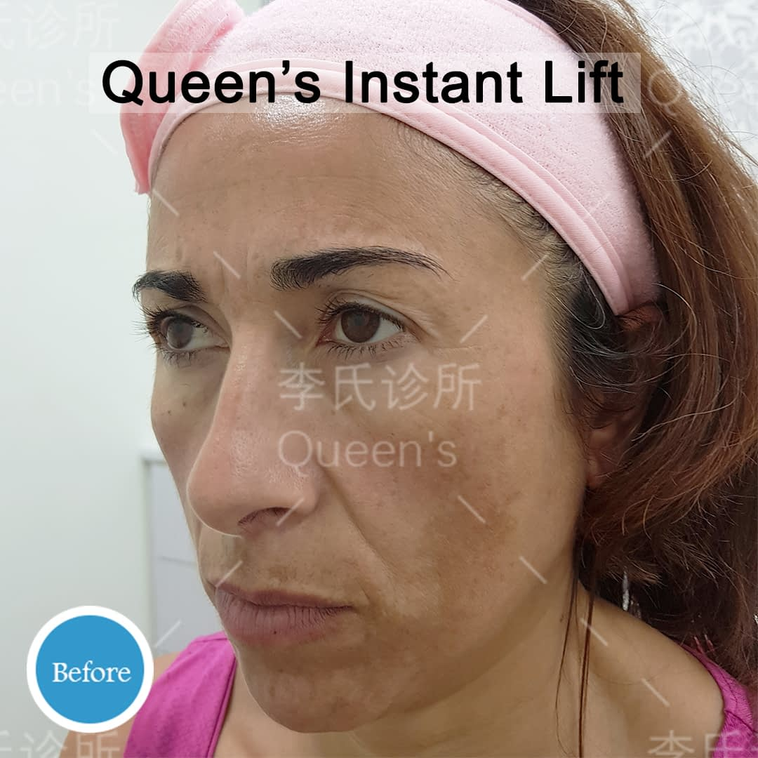 Rita-Pisu-Before-Instant-Lift-Treatment