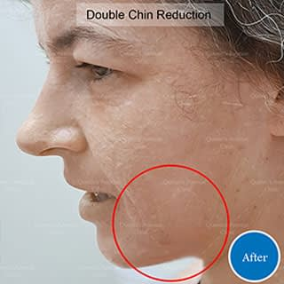 After Double Chin Reduction Treatment