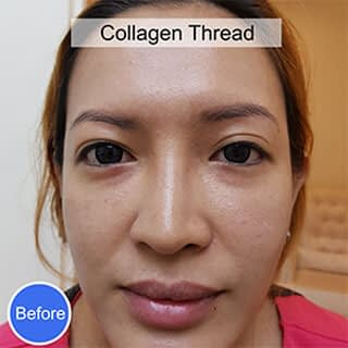 Before Collagen Thread Treatment