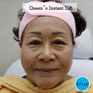 Instant-Lift-After-Aunty-Helen