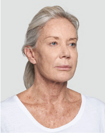 After-Silhouette-Soft-Lift-to-Neck