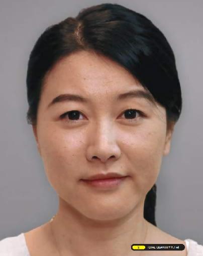 Asian-After-Ellanse-Treatment