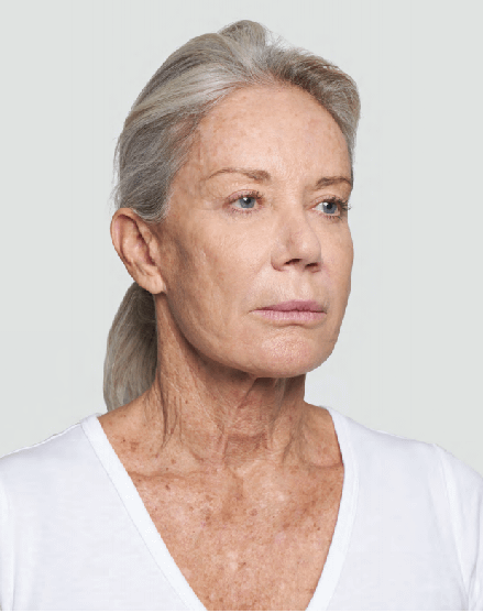 Before-Silhouette-Soft-Lift-to-Neck